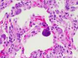cmv cytomegalovirus pathology lung trnasplant bilateral orthotopic pneumonitis virus herpes