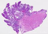 cervix adenocarcinoma villoglandular whole mount